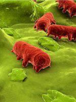 Bactéries pathogènes et alimentation